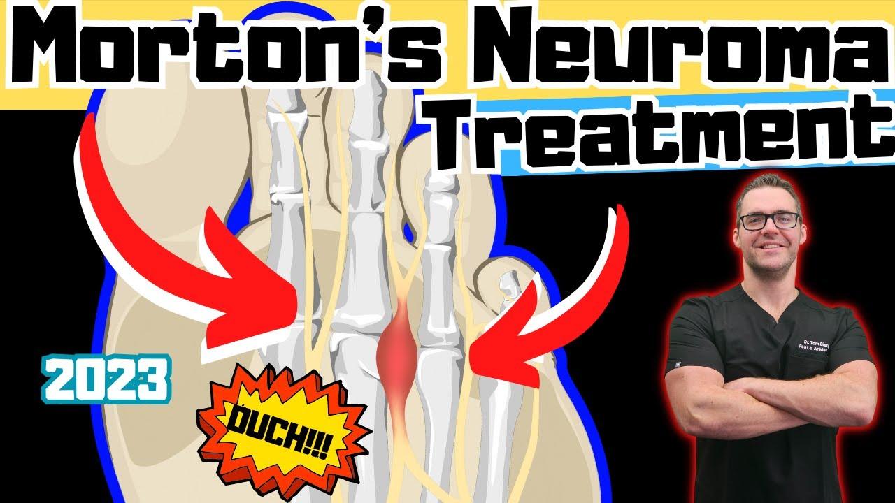 ebb2a94630 Morton Neuroma Foot Pain * HOME Treatment* - YouTube