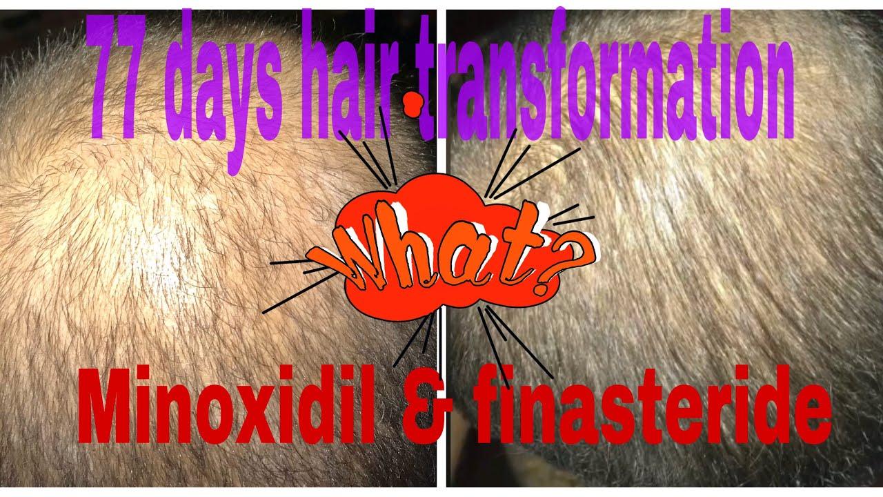 77 Days Result Use Of Minoxidil Finasteride Biotin And Ketoconazole Shampoo Youtube