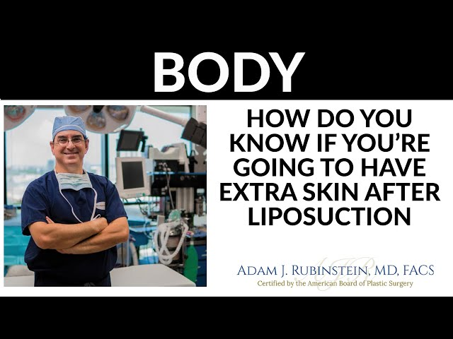 PST - How do you know if you're going to have extra skin after Liposuction?