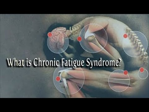 Chronic Fatigue Syndrome: The Basics