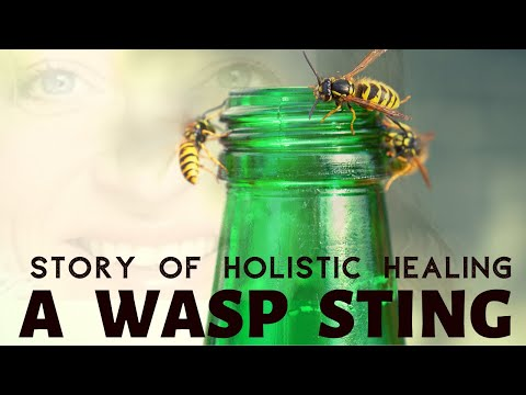 Wasp sting treatment with Holistic Healing