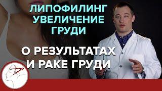 лИПОФИЛИНГ при увеличении груди. О результате и раке молочной железы. (18)