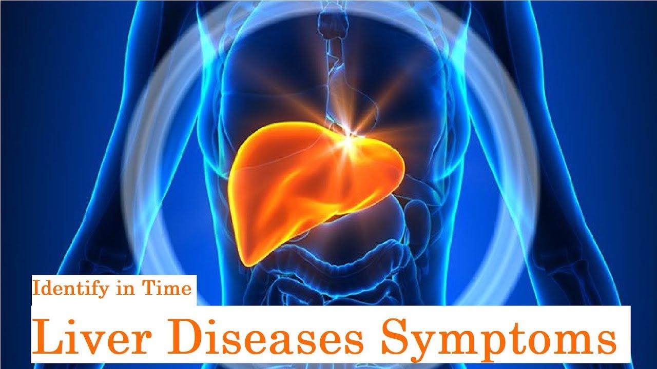 Liver Diseases Symptoms I Dr K S Soma Sekhar Rao, Best Gastroenterologist in Hyderabad #Gastroenterology