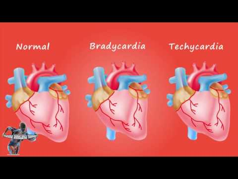 Bradicardia e tachicardia (cuore)