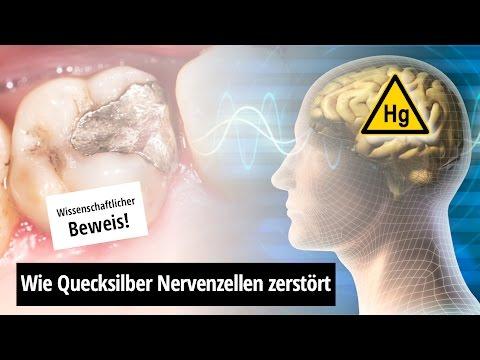 Amalgamentfernung: Nervengift Quecksilber (mit deutscher Übersetzung)