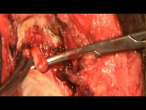 EMASCULATION -TOTAL PENECTOMY WITH PERINEAL URETHROSTOMY FOR CA PENIS BY DR.MARIMUTHU SARAVANAMUTHU