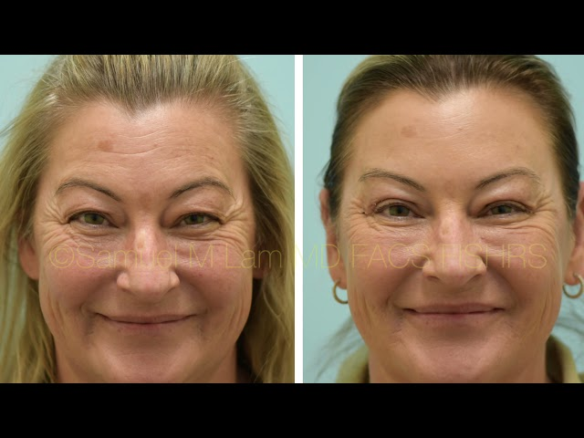 Dallas Upper Eyelid Surgery Before and After