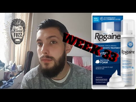 Minoxidil Beard | Week 33 | The Experiment | #Facialfuzzfridays