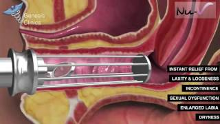 Repeat youtube video Nu-V Non Surgical Vaginaplasty and Labiaplasty