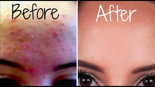 How I Got Rid Of My Acne FOREVER!