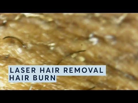 LASER HAIR REMOVAL MAGNIFIED @ Pulse Light Clinic-HAIR BURN