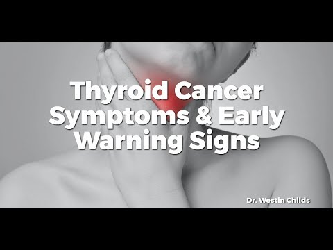 Thyroid Cancer Symptoms Early Warning Signs Youtube