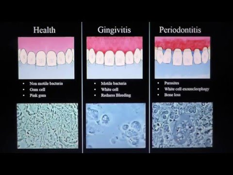 Health, Gingivitis,  Periodontitis. Mark Bonner dmd