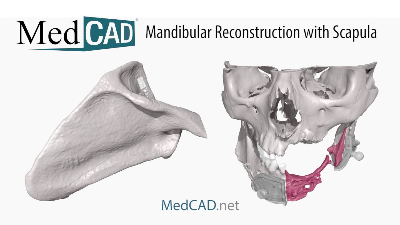MANDIBULAR RECONSTRUCTION EBOOK DOWNLOAD