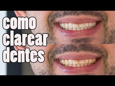 Como Clarear Dentes No Lightroom E Photoshop Basico 07 Youtube