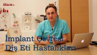 İmplant Çevresi Diş Eti Hastalıkları - Prof Dr Bülent Kurtiş