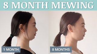 8 Months Mewing Before & After at Age 28 – Hmmmm 🤔