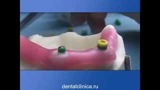 Клиника эстетической стоматологии протезирование системой Rhein83 Уроки технологии