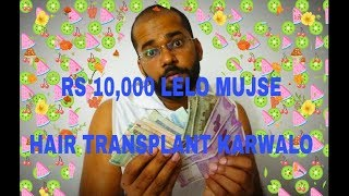 I Will Give You Rs 10,000 for Your Hair Transplant Surgery in India - Best Hair Transplant Chennal