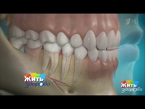 Как чистить зубы при пародонтозе