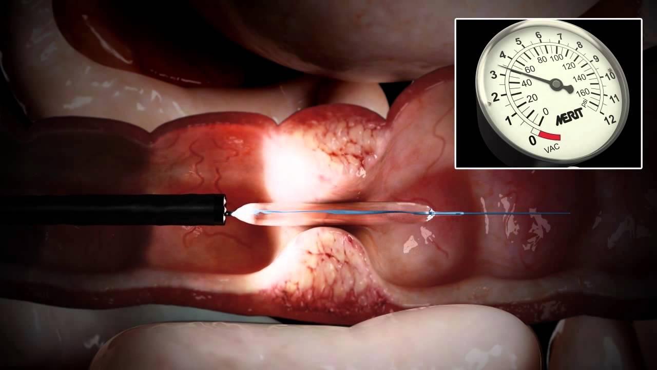 Endoscopia baja para que sirve