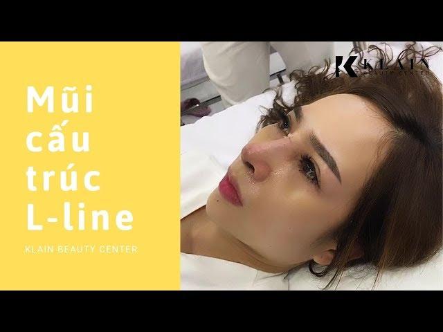 Nâng mũi cấu trúc L-line Cao Tây sau 10 ngày tại Klain Beauty Center