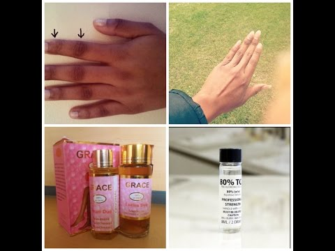 how to get rid of cut scars on hands