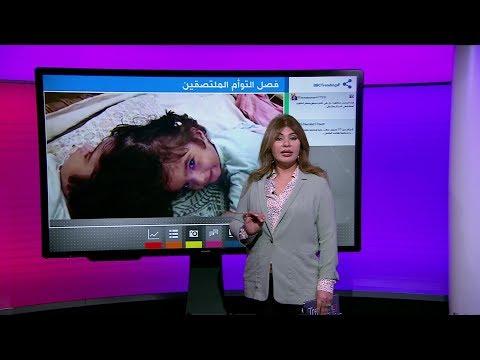 كيف تم فصل توأم باكستاني ملتصق من الرأس في جراحة نادرة؟  - نشر قبل 15 دقيقة