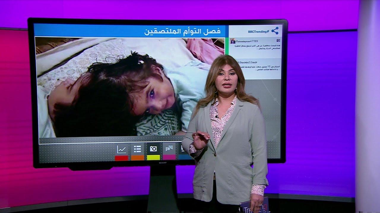 كيف تم فصل توأم باكستاني ملتصق من الرأس في جراحة نادرة؟