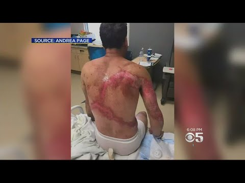 Family Survives Getting Struck By Lightning In Sequoia National Forest