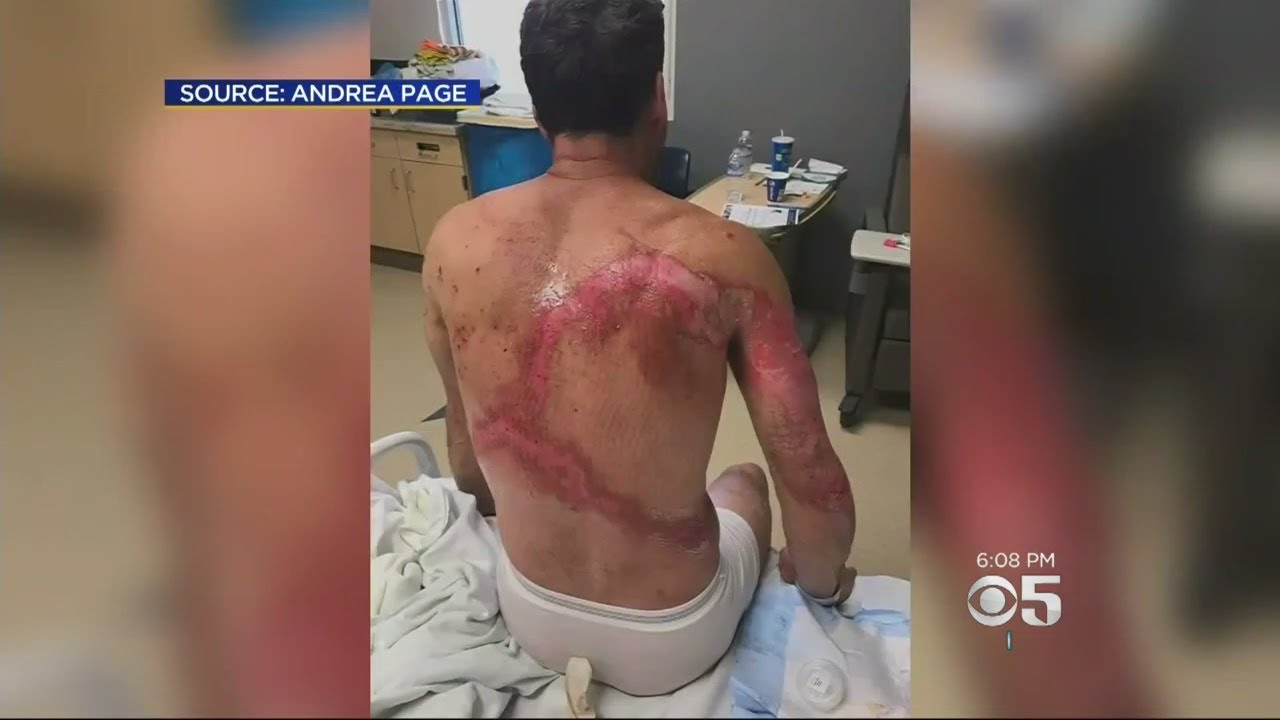 Download Family Survives Getting Struck By Lightning In Sequoia National Forest