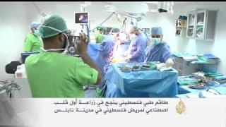 أطباء فلسطينيون ينجحون بزراعة أول قلب صناعي