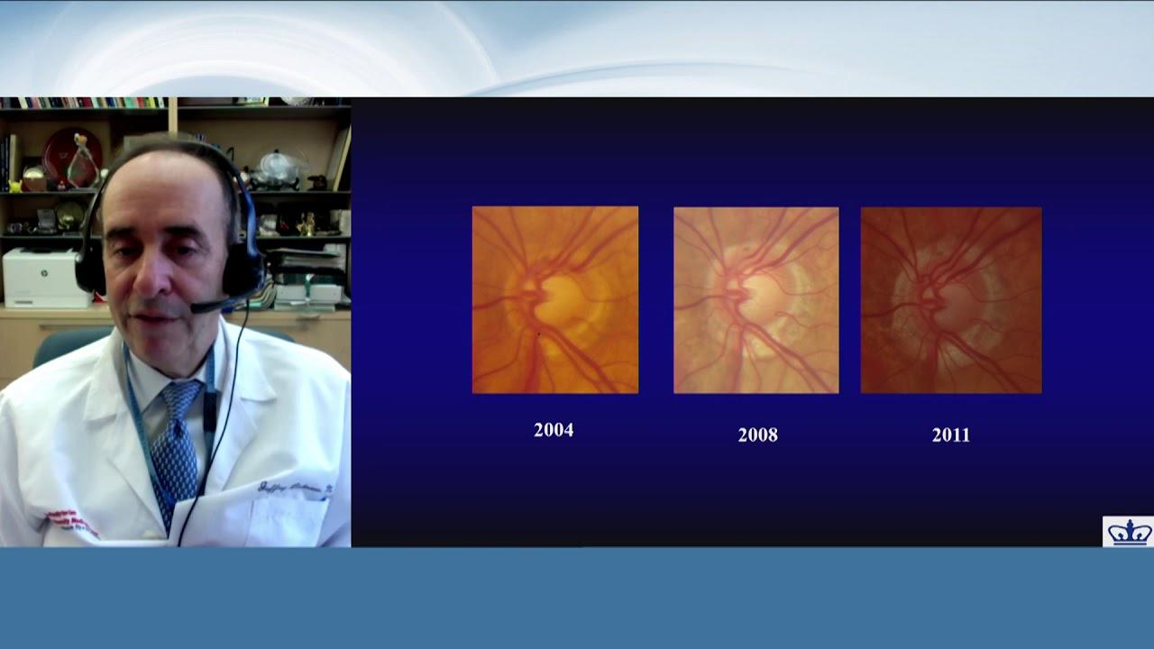 Perfusion, phenotype and progression