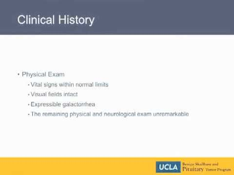 Clinical History - Stalk Effect | UCLA Pituitary Tumor Program