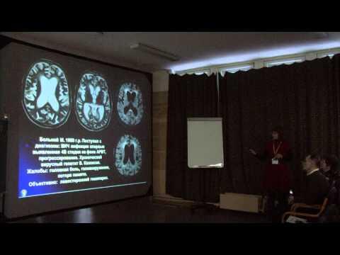 Многообразие изменений мозга у ВИЧ-инфицированных