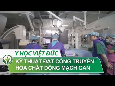 Kỹ Thuật đặt Cổng Truyền Hoá Chất ĐM Gan