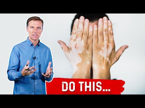 Vitiligo: Do These 3 Things