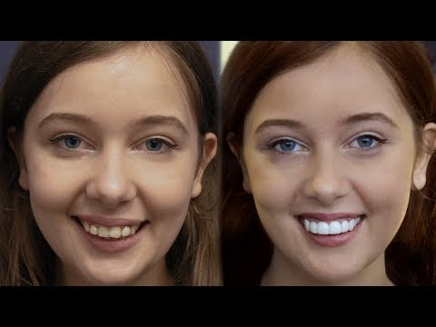 LA California Girl Gets Dental Veneers by Brighter Image Lab -Took 7 Minutes..