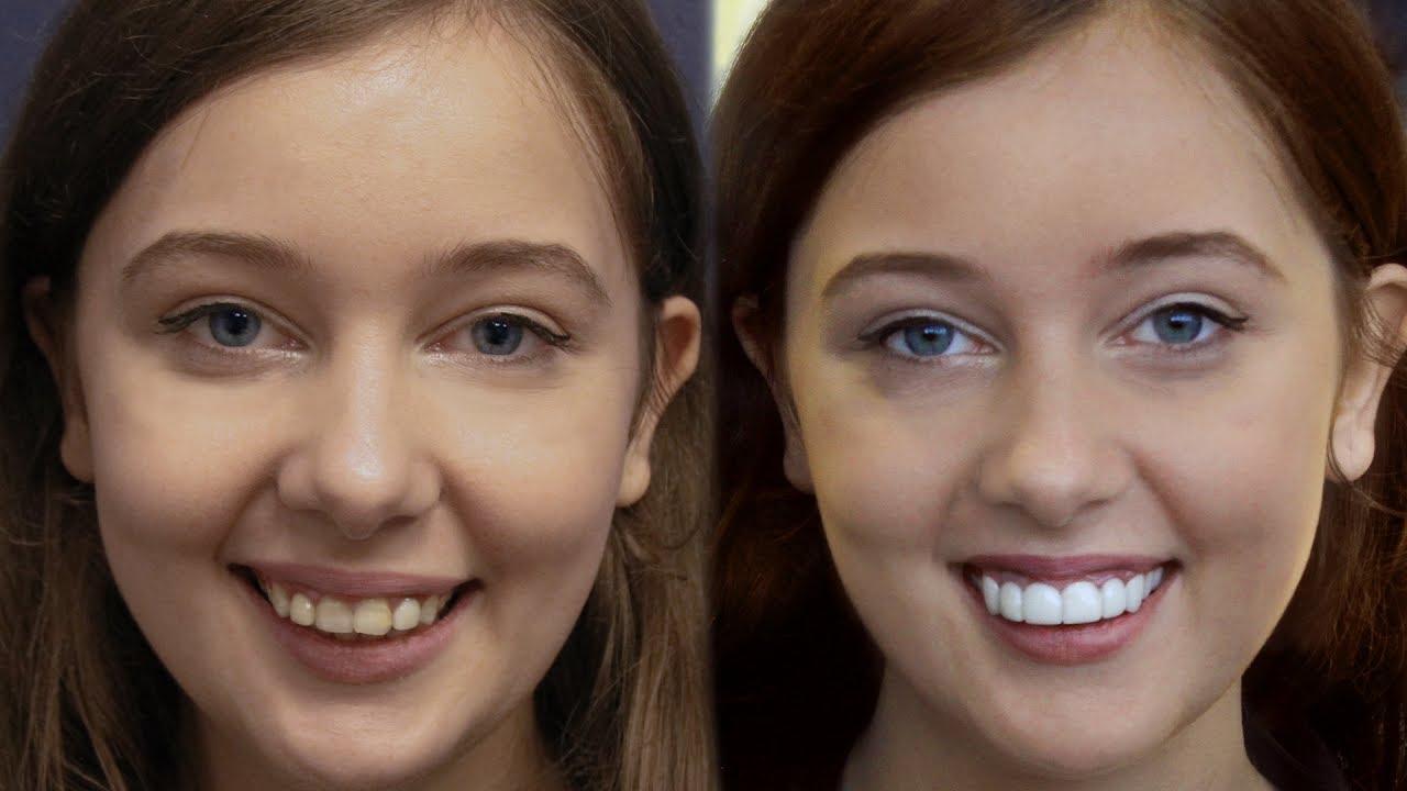 Youtube Video LA California Girl Gets Dental Veneers by Brighter Image Lab -Took 7 Minutes..