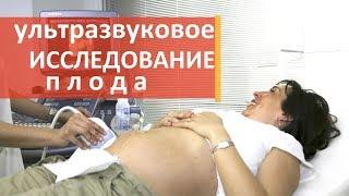 видео Экспертное УЗИ при беременности