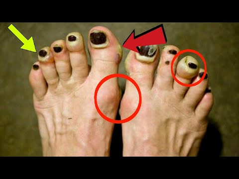 The deal with black toenails....and Running The Delsol Runner