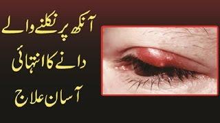 Eyes Per Niklne Wale Dane Ka Ilaj Urdu Hindi | آنکھ پرنکلنے والے دانے کا انتہائی آسان علاج