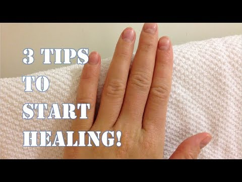 Healing Eczema FOREVER // 3 Tips to Start Healing