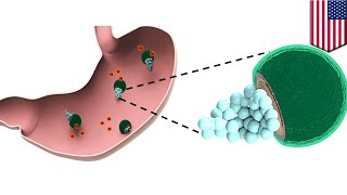 Stomach infection  Drug bearing micromotors could provide one step treatment   TomoNews