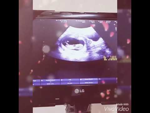 Kehamilan 3 bulan di perut udh aktif