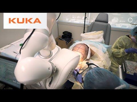 Robotic Hair Restoration Can Improve Millions of Lives | Medical Robotics