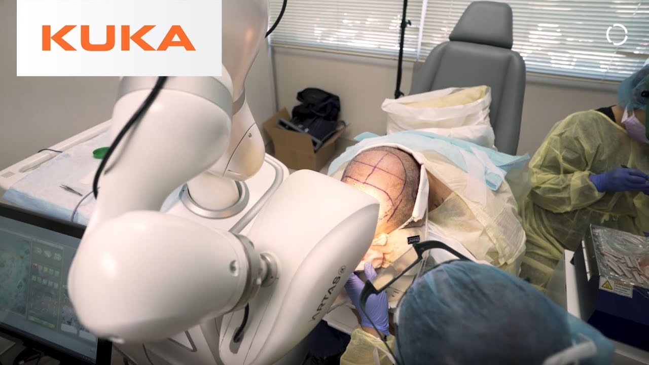 Robotic Hair Restoration Can Improve Millions of Lives | Medical Robotics