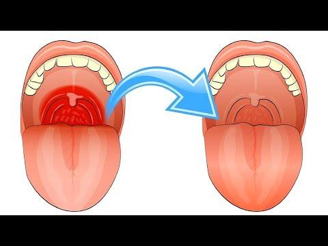 7 Tipps mit denen du Halsschmerzen schnell wegbekommen wirst
