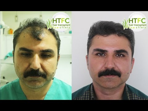 4000 Grafts - FUE | HAIR TRANSPLANT FUE CLINIC TURKEY!