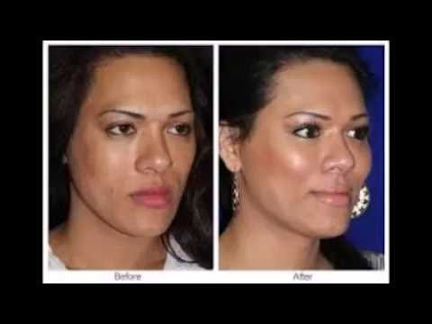 permanent facelift without surgery best facelift without surgery